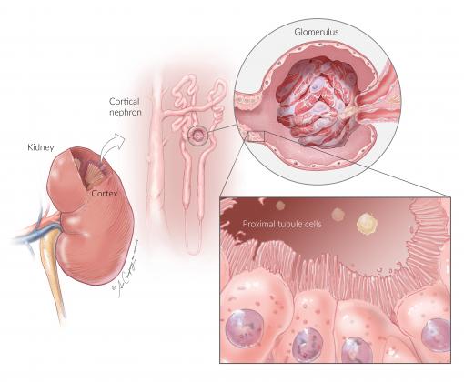 NhKPT Kidney