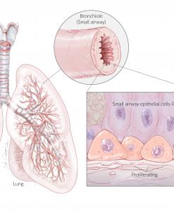 NhSAE-P1 Lung