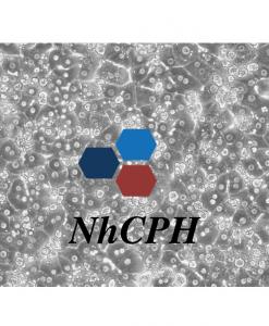 NhCPH